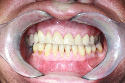 Teeth after cosmetic work