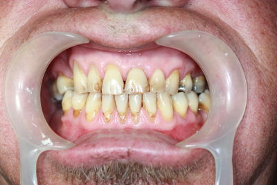 Cosmetic dentistry : Park Chambers Dental Practice - Dentist