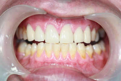 Teeth after crown work