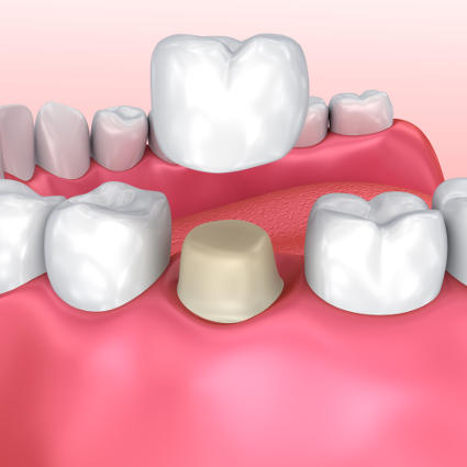 computer model of crowns